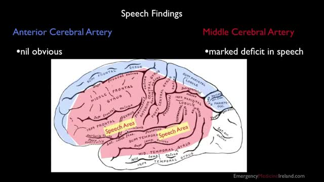 011 Anterior And Middle Cerebral Arteries Anatomy For Emergency