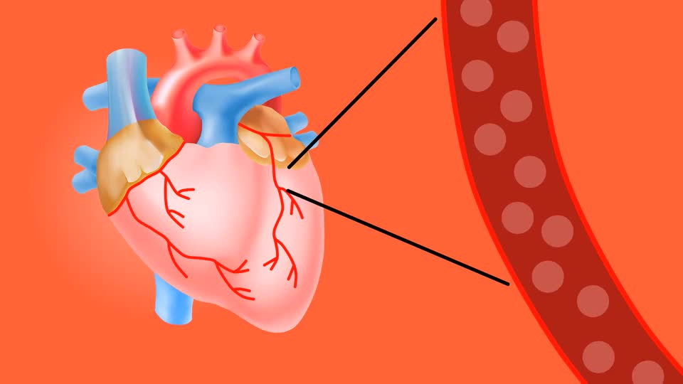 plaque formation leading to heart attack