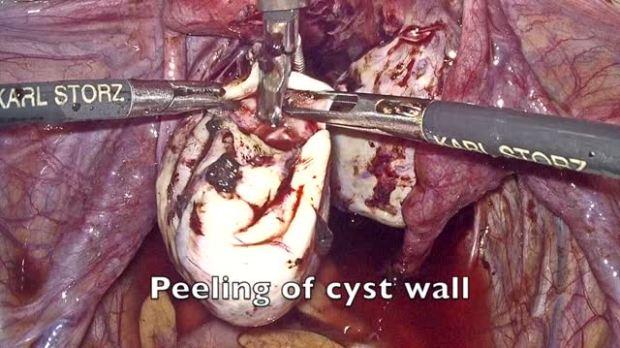 Laparoscopic cystectomy with vasopresin