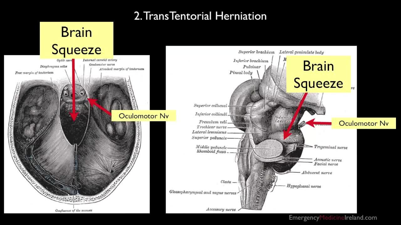 009 brain herniation anatomy for emergency medicine
