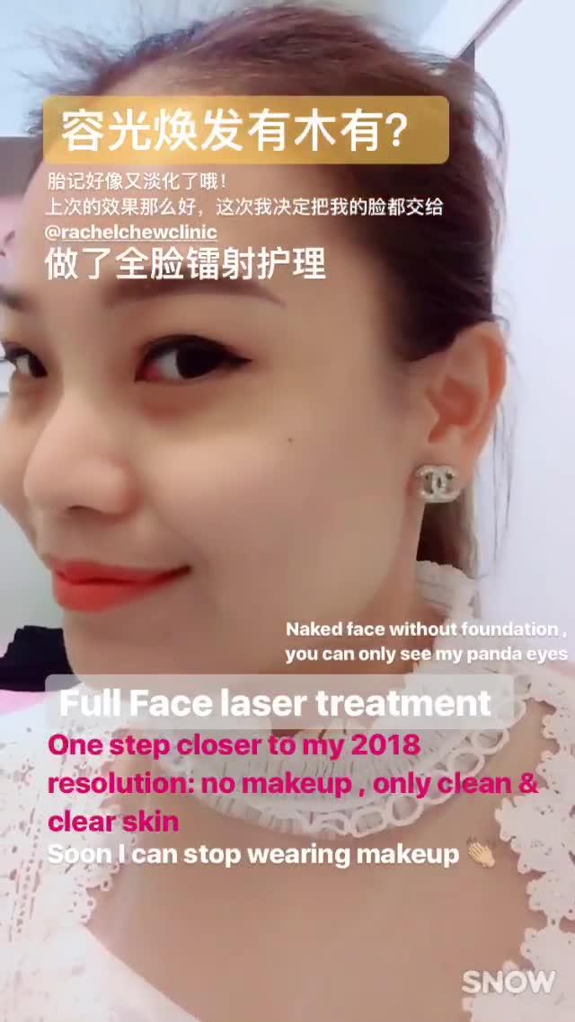 Bye Birthmark My First Laser Experience At Rachel Chew