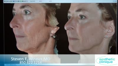 infini-before-and-after-results-3d-photos-discussed-by-dr-steven-weiner
