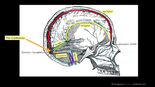 008 Dural Venous Sinuses Anatomy For Emergency Medicine